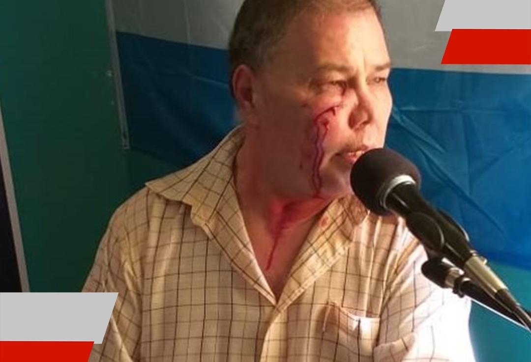 Allanamientos y órdenes de restricción de acercamiento por la agresión a TelmoBenítez